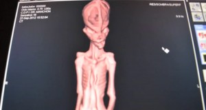 Ata CT scan