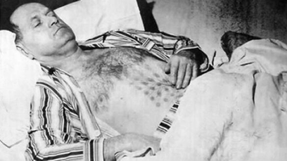 Stefan Michalak was treated at a hospital for burns to his chest and stomach that later turned into raised sores on a grid-like pattern.