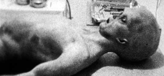 Scene from Santilli's Alien Autopsy.