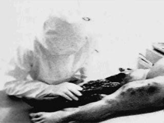 leg-autopsy-2web